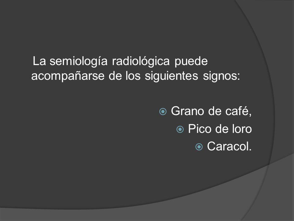 La semiología radiológica puede acompañarse de los siguientes signos: