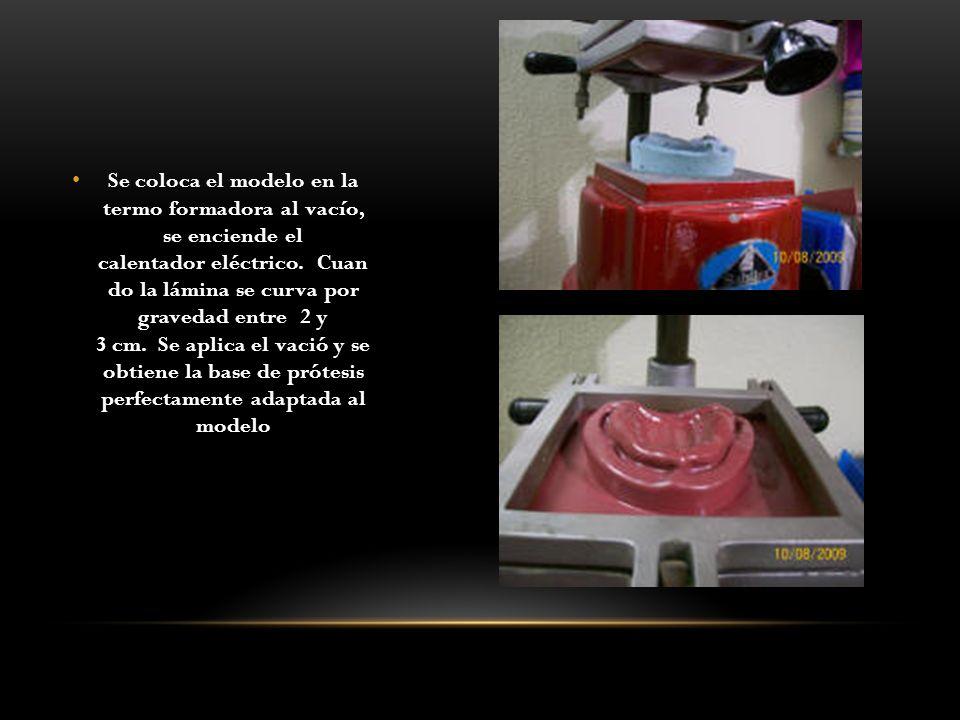 Se coloca el modelo en la termo formadora al vacío, se enciende el calentador eléctrico. Cuan do la lámina se curva por gravedad entre 2 y 3 cm. Se aplica el vació y se obtiene la base de prótesis perfectamente adaptada al modelo