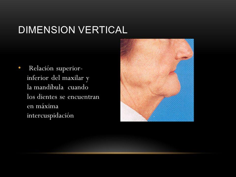 DIMENSION VERTICAL Relación superior- inferior del maxilar y la mandíbula cuando los dientes se encuentran en máxima intercuspidación.