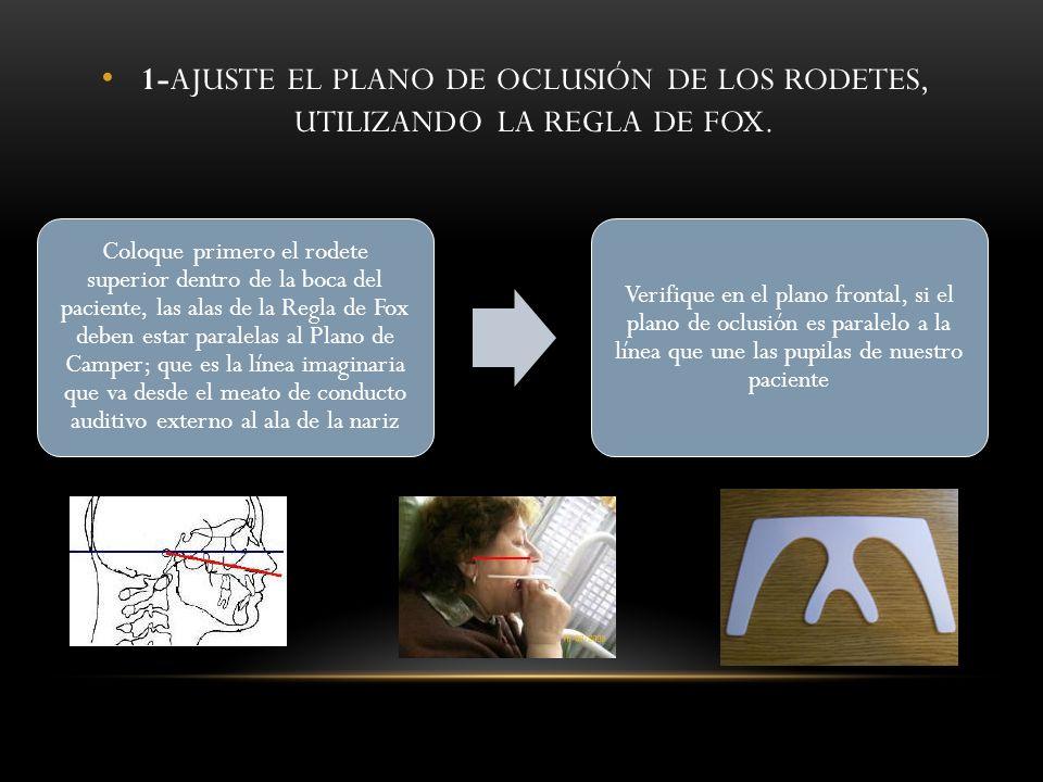 1-AJUSTE EL PLANO DE OCLUSIÓN DE LOS RODETES, UTILIZANDO LA REGLA DE FOX.