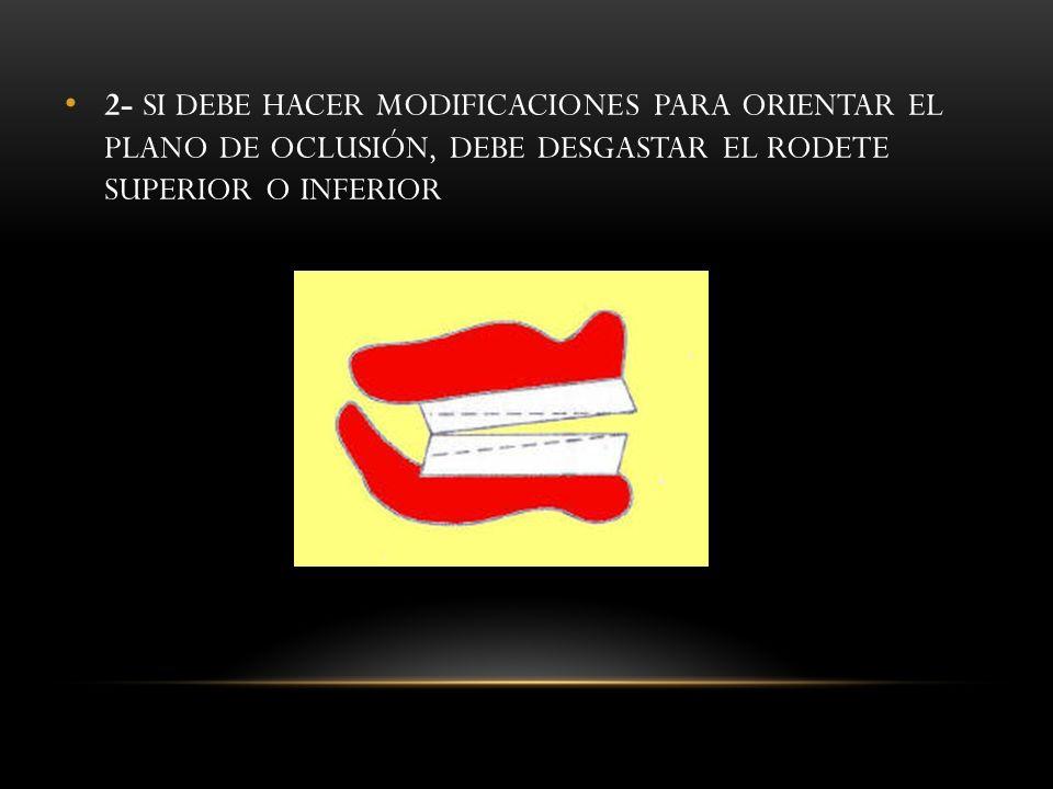 2- SI DEBE HACER MODIFICACIONES PARA ORIENTAR EL PLANO DE OCLUSIÓN, DEBE DESGASTAR EL RODETE SUPERIOR O INFERIOR
