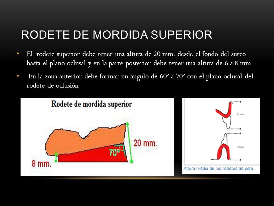 RODETE DE MORDIDA SUPERIOR