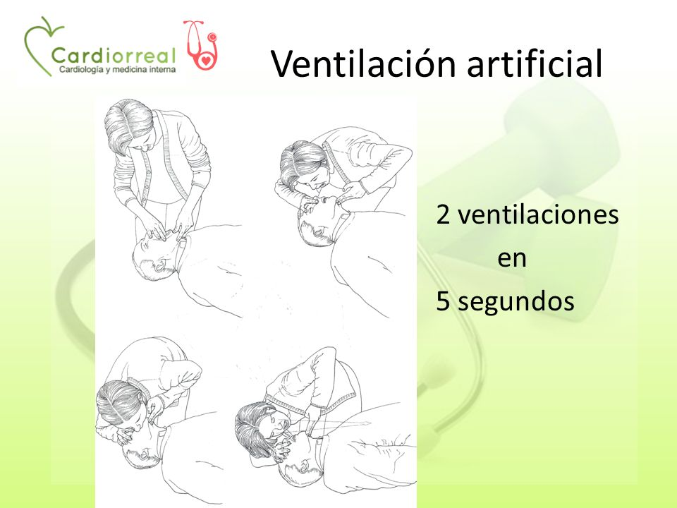 Ventilación artificial