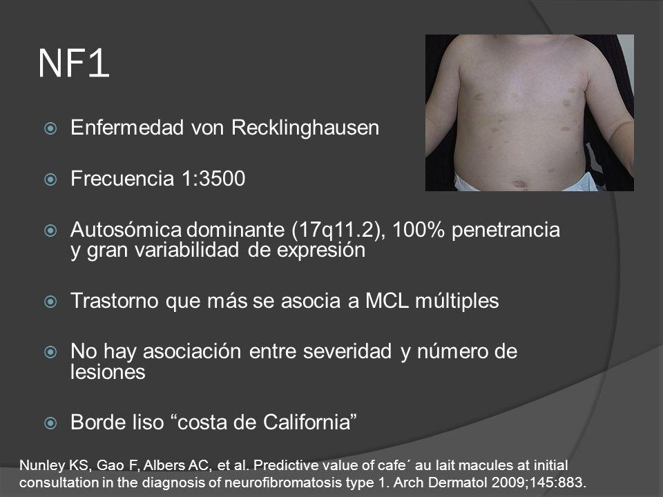 NF1 Enfermedad von Recklinghausen Frecuencia 1:3500