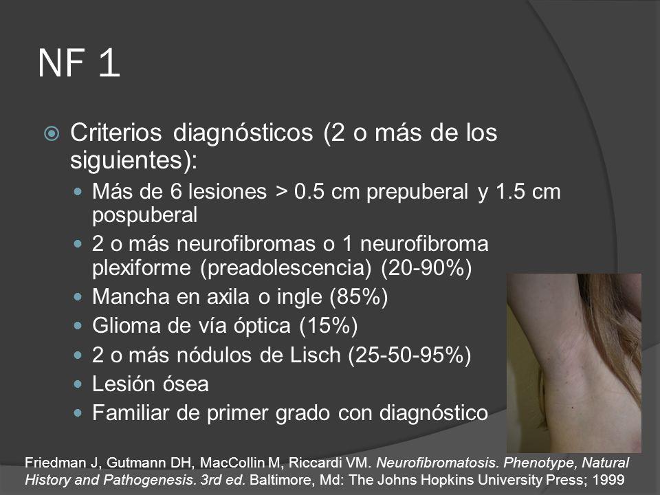 NF 1 Criterios diagnósticos (2 o más de los siguientes):