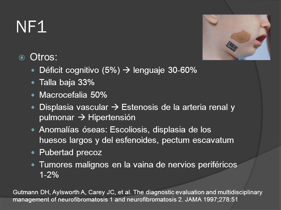 NF1 Otros: Déficit cognitivo (5%)  lenguaje 30-60% Talla baja 33%
