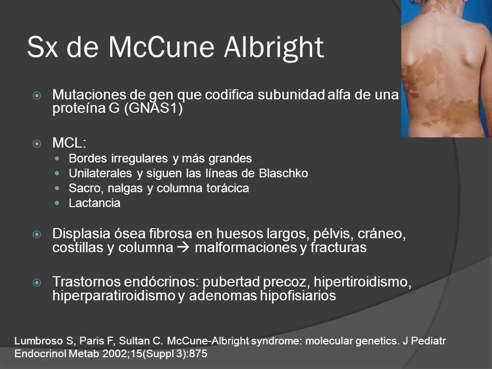 Sx de McCune Albright Mutaciones de gen que codifica subunidad alfa de una proteína G (GNAS1) MCL: