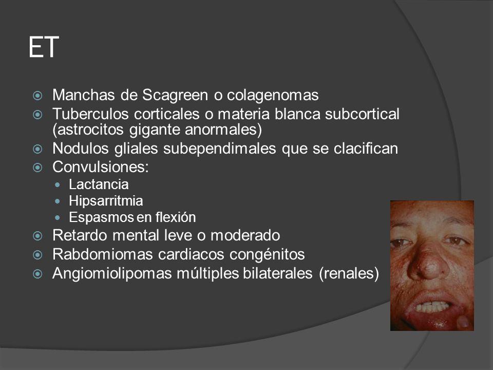 ET Manchas de Scagreen o colagenomas