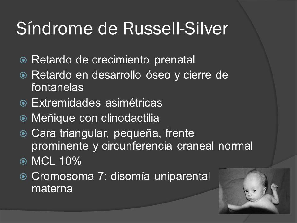 Síndrome de Russell-Silver