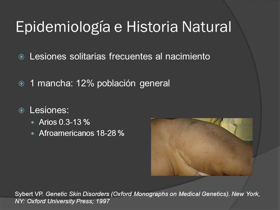 Epidemiología e Historia Natural