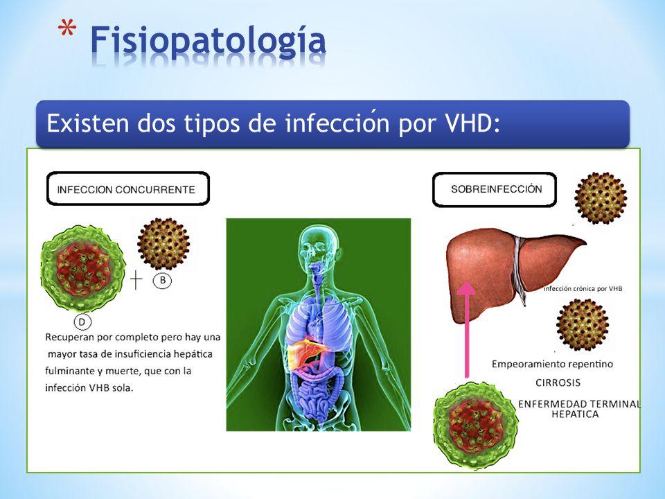 Fisiopatología Existen dos tipos de infección por VHD: