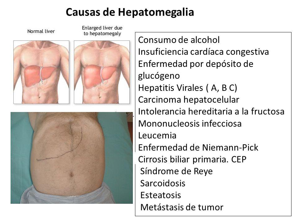 Causas de Hepatomegalia
