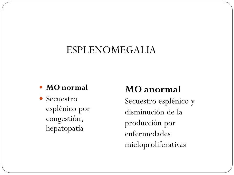 ESPLENOMEGALIA MO anormal