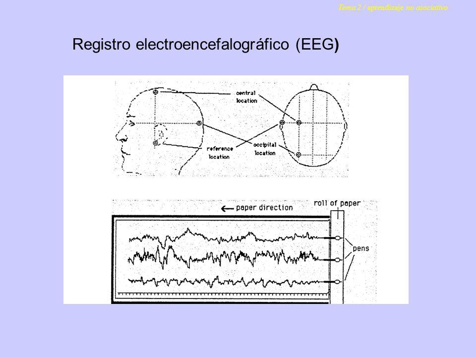 Registro electroencefalográfico (EEG)