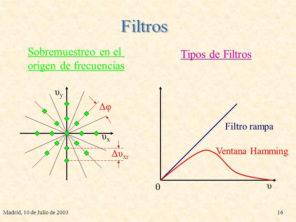 Filtros Sobremuestreo en el Tipos de Filtros origen de frecuencias υy