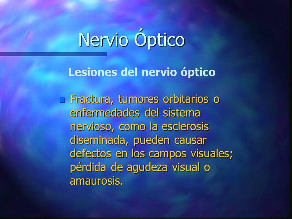 Nervio Óptico Lesiones del nervio óptico