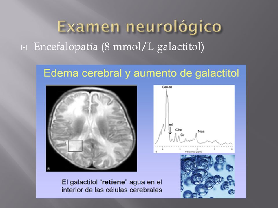 Examen neurológico Encefalopatía (8 mmol/L galactitol)