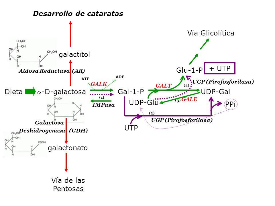 Desarrollo de cataratas