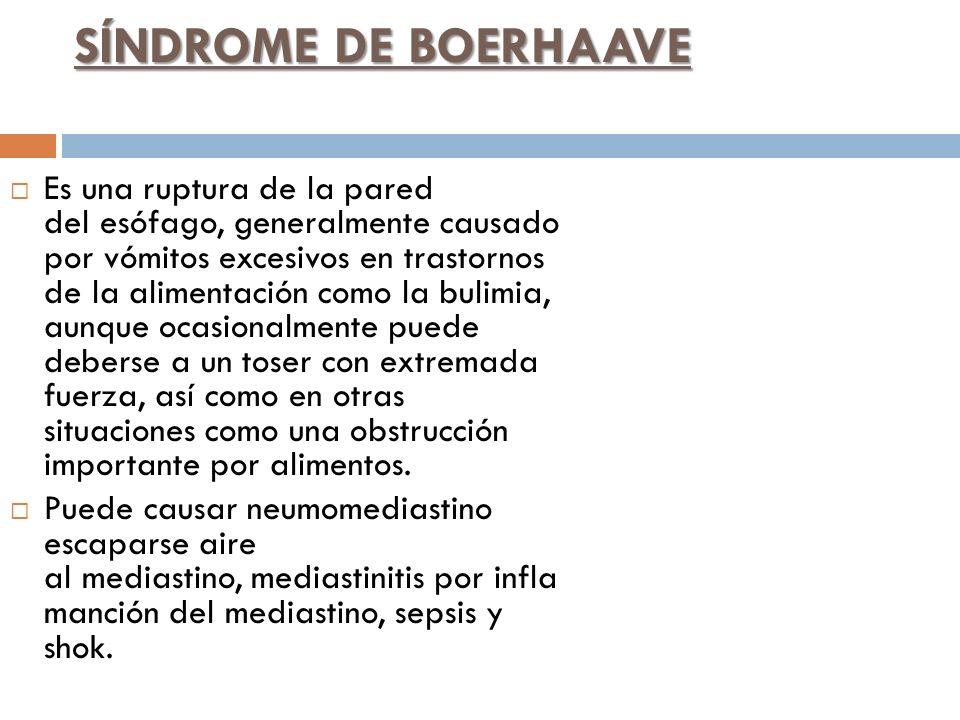 SÍNDROME DE BOERHAAVE
