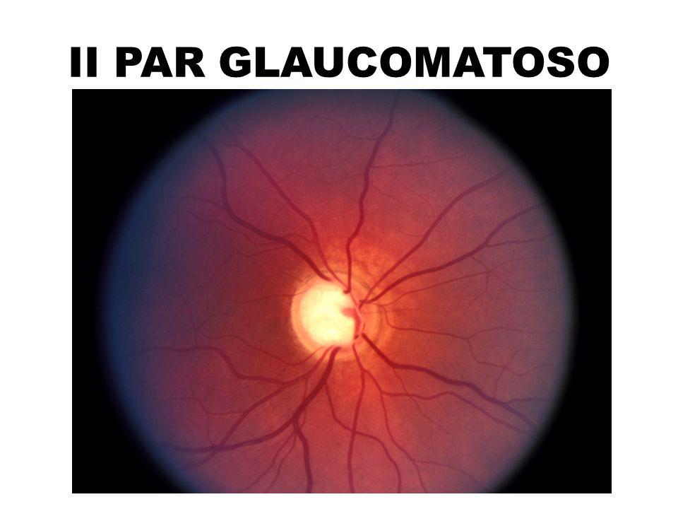 II PAR GLAUCOMATOSO