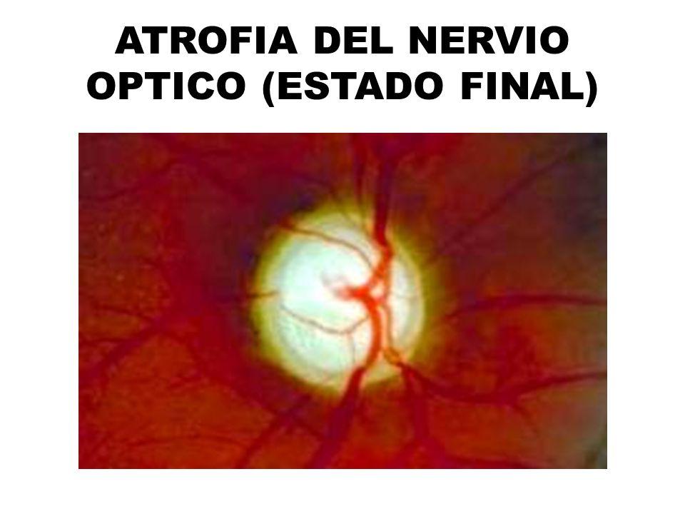 ATROFIA DEL NERVIO OPTICO (ESTADO FINAL)