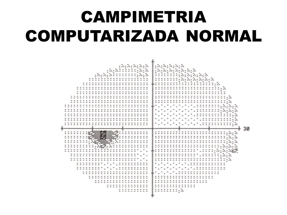CAMPIMETRIA COMPUTARIZADA NORMAL