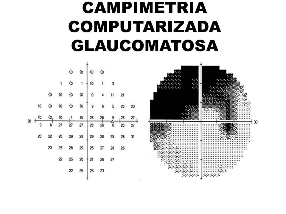 CAMPIMETRIA COMPUTARIZADA GLAUCOMATOSA