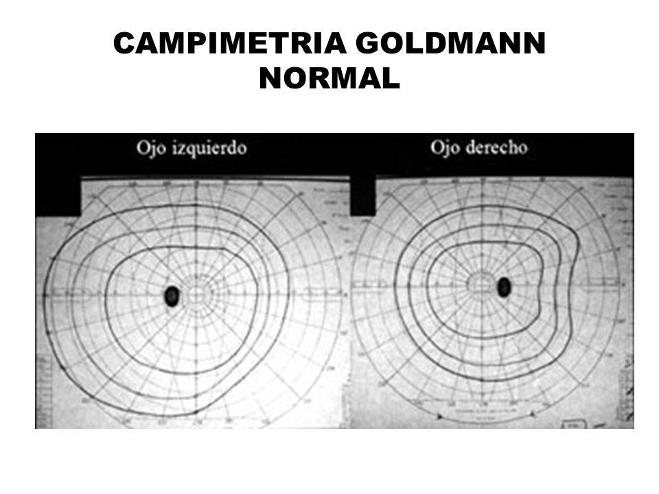 CAMPIMETRIA GOLDMANN NORMAL