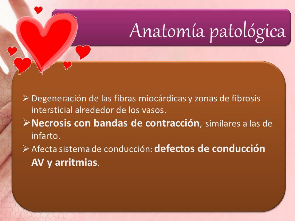 Anatomía patológica Degeneración de las fibras miocárdicas y zonas de fibrosis intersticial alrededor de los vasos.