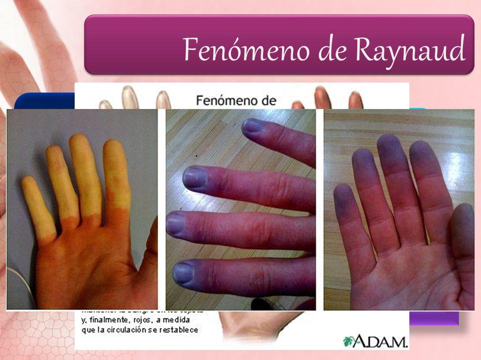 Fenómeno de Raynaud Palidez (frialdad) Cianosis