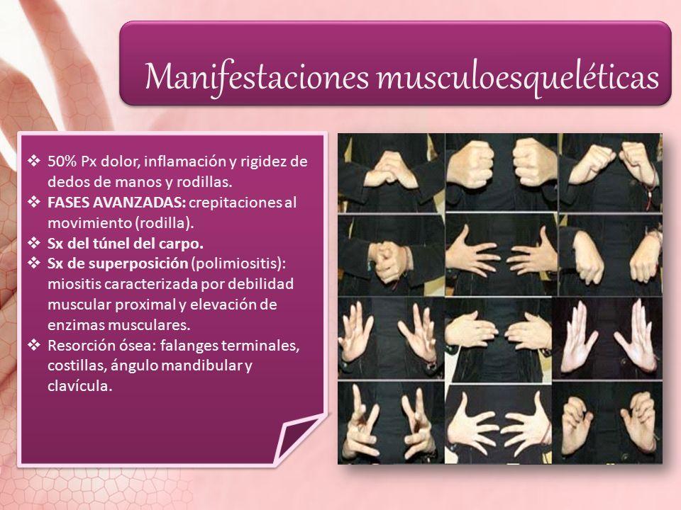 Manifestaciones musculoesqueléticas