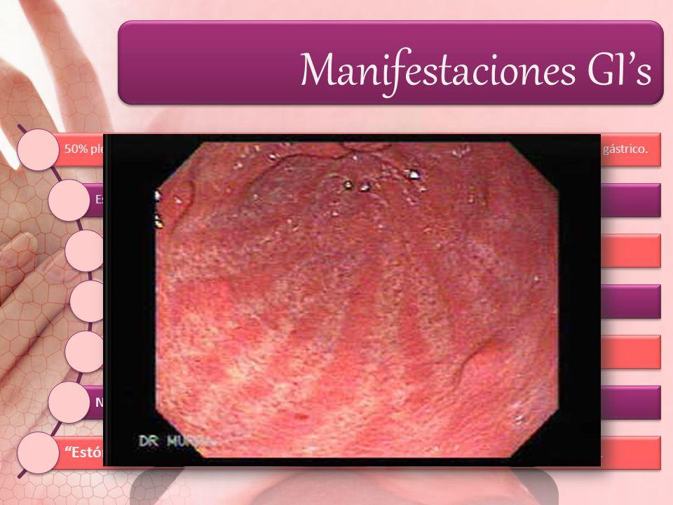 Manifestaciones GI's 50% plenitud gástrica, dolor urente en epigastrio o región retroesternal y regurgitación del contenido gástrico.