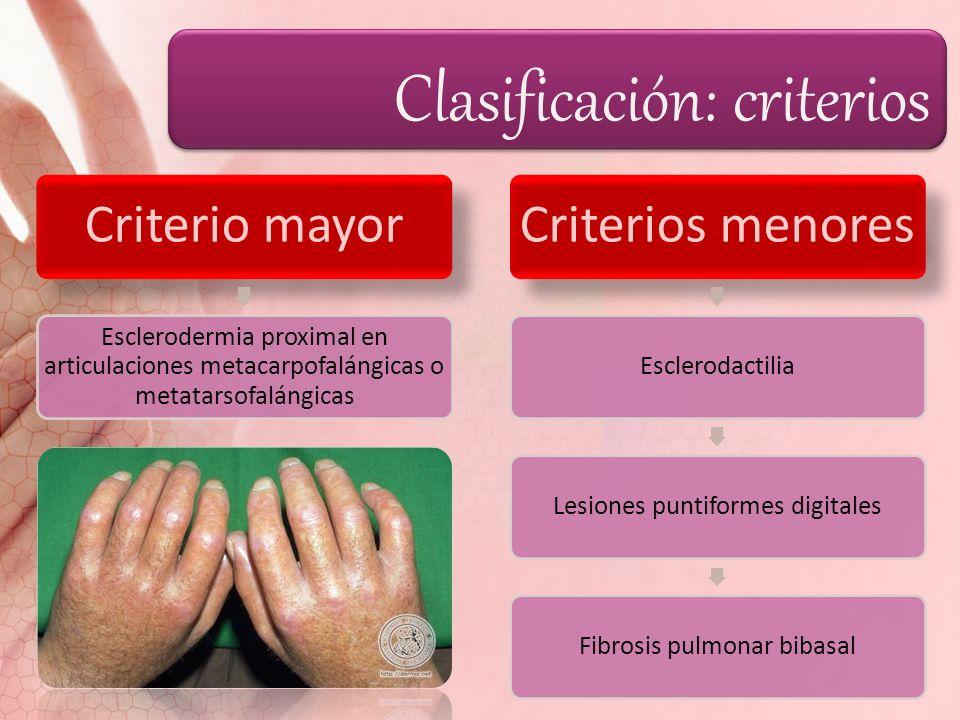 Clasificación: criterios