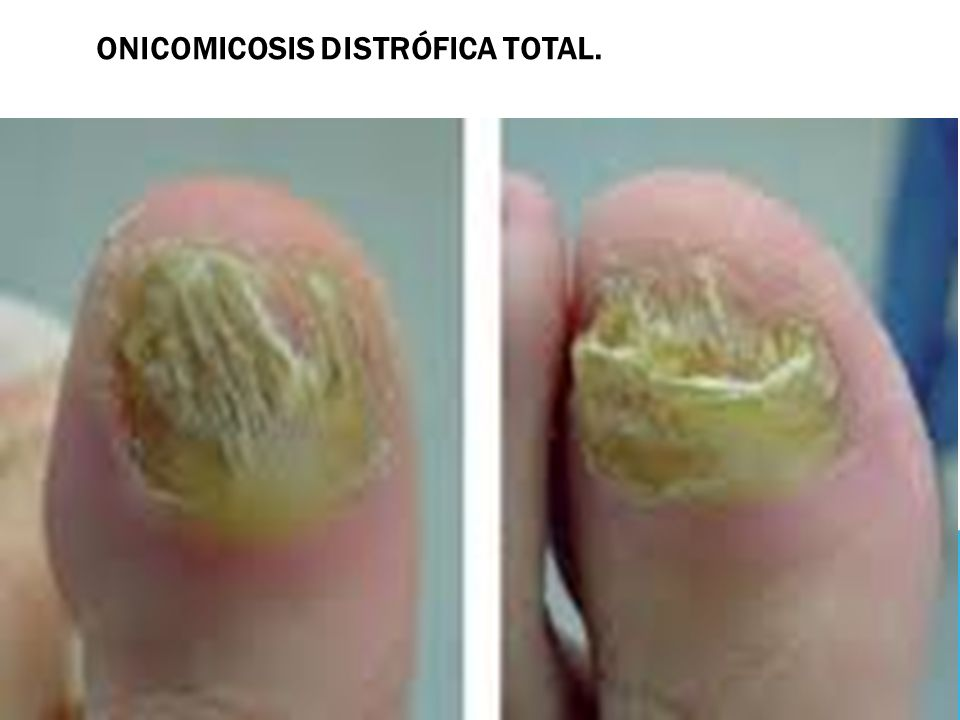 Onicomicosis distrófica total.