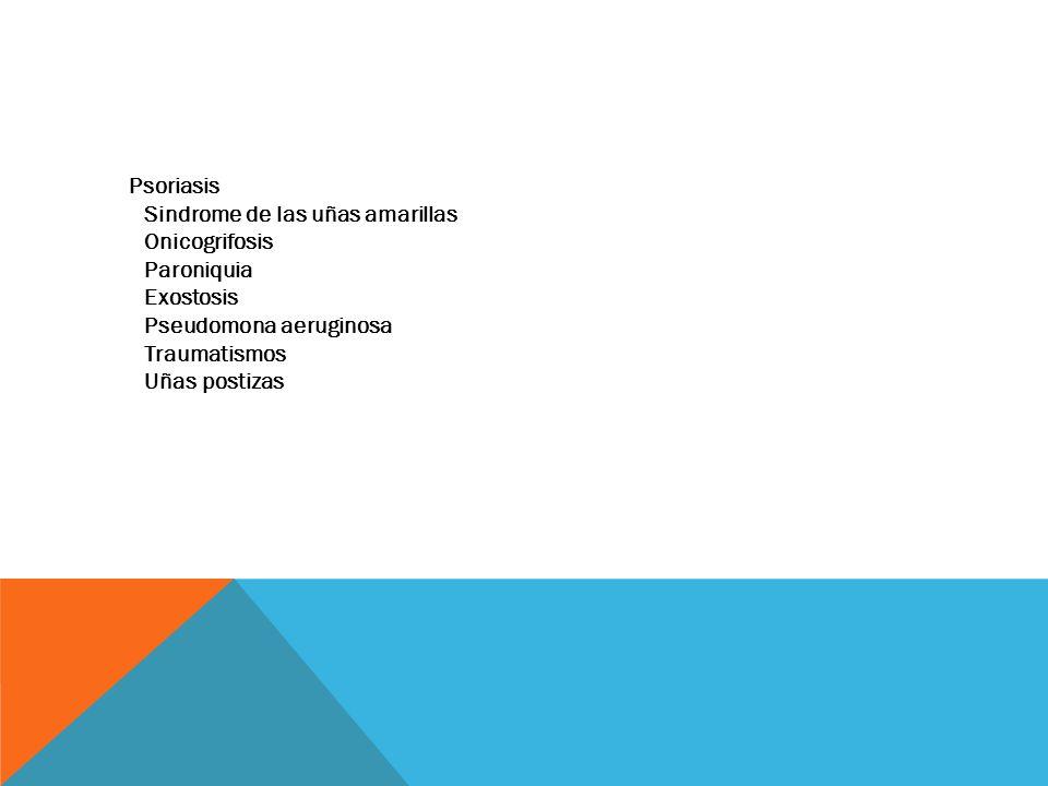 Psoriasis Sindrome de las uñas amarillas Onicogrifosis Paroniquia Exostosis Pseudomona aeruginosa Traumatismos Uñas postizas