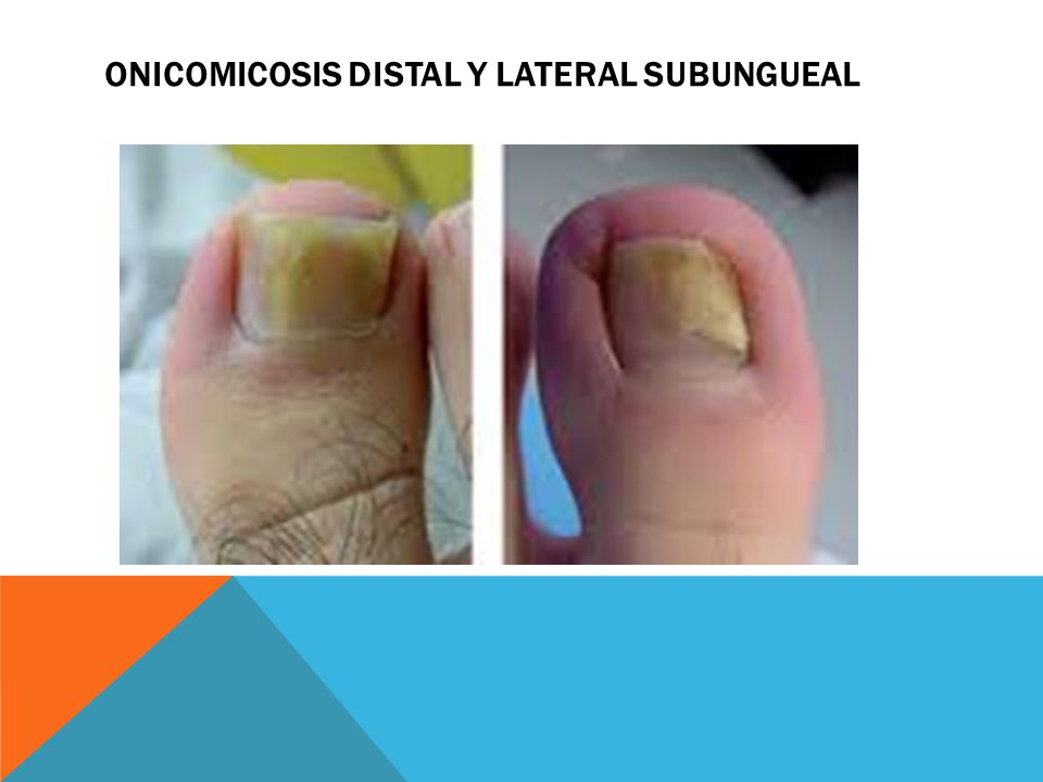 Onicomicosis distal y lateral subungueal