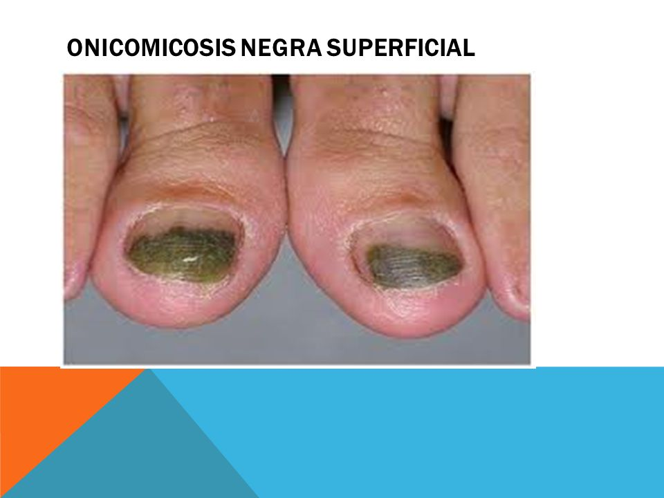 Onicomicosis negra superficial