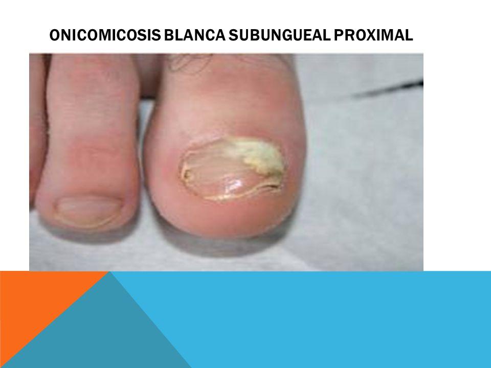 Onicomicosis blanca subungueal proximal