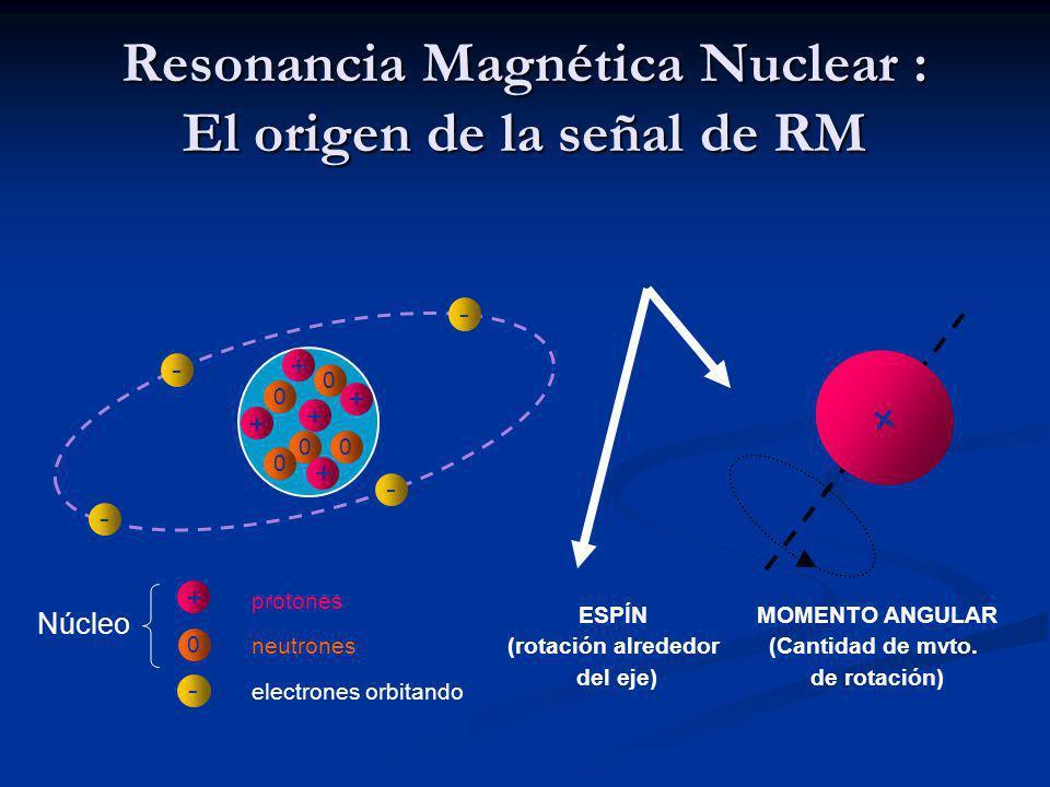 Resonancia Magnética Nuclear : El origen de la señal de RM