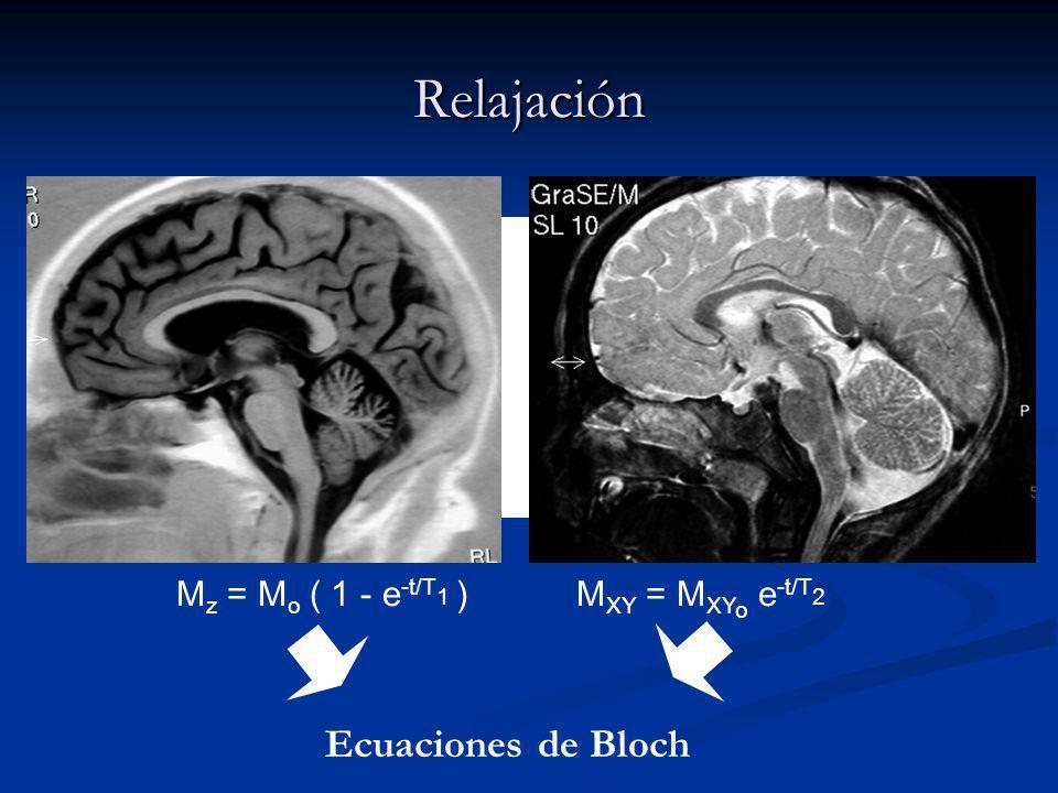 Relajación Ecuaciones de Bloch Mz = Mo ( 1 - e-t/T1 )
