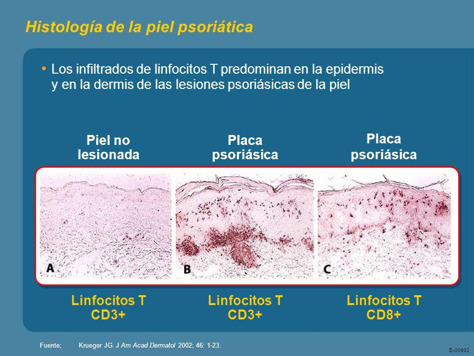 Histología de la piel psoriática