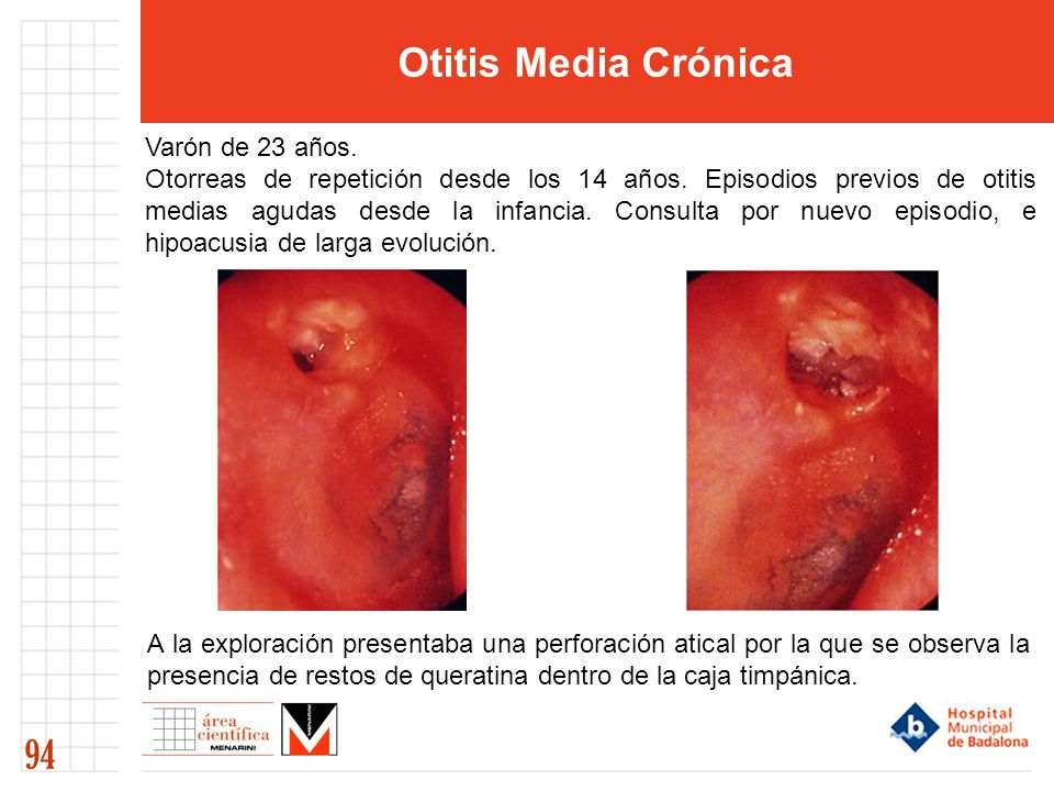 Otitis Media Crónica 94 Varón de 23 años.