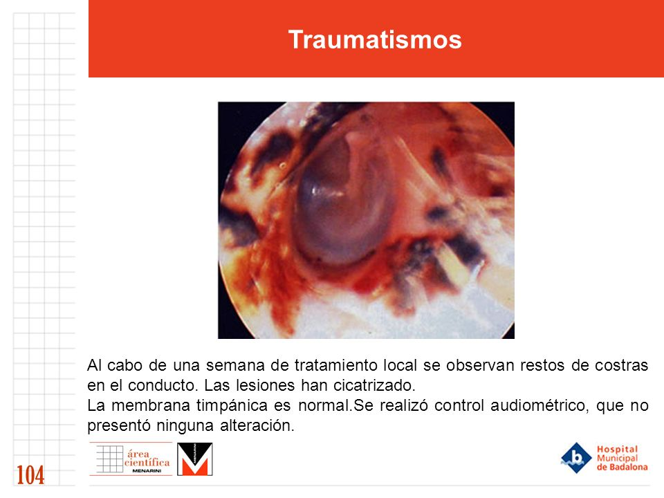 Traumatismos Al cabo de una semana de tratamiento local se observan restos de costras en el conducto. Las lesiones han cicatrizado.