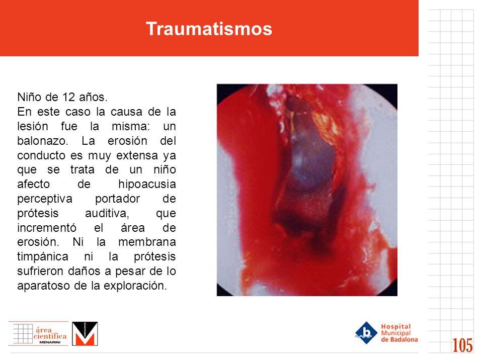 Traumatismos 105 Niño de 12 años.