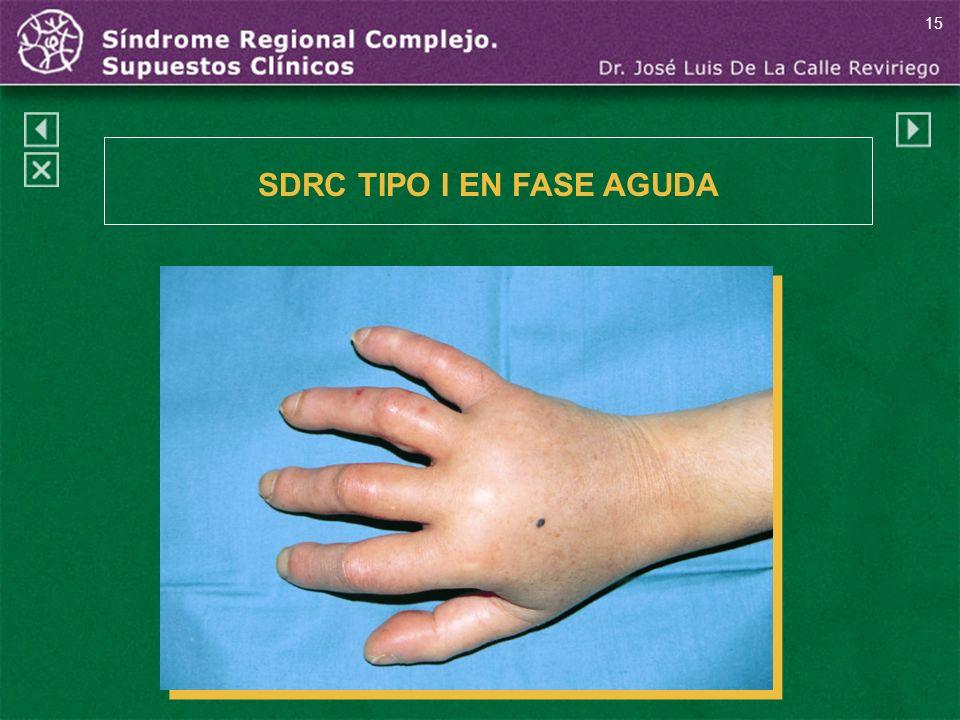 SDRC TIPO I EN FASE AGUDA