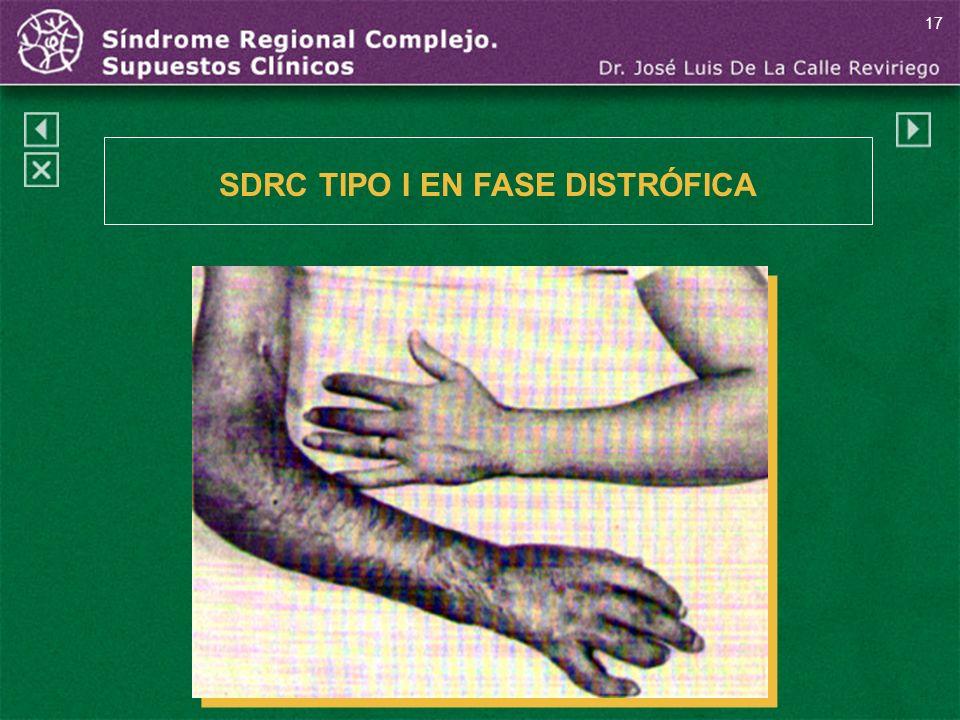 SDRC TIPO I EN FASE DISTRÓFICA