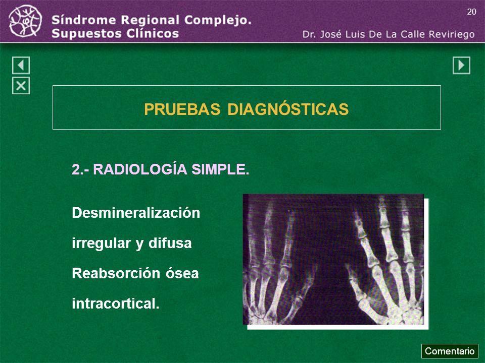 PRUEBAS DIAGNÓSTICAS 2.- RADIOLOGÍA SIMPLE. Desmineralización