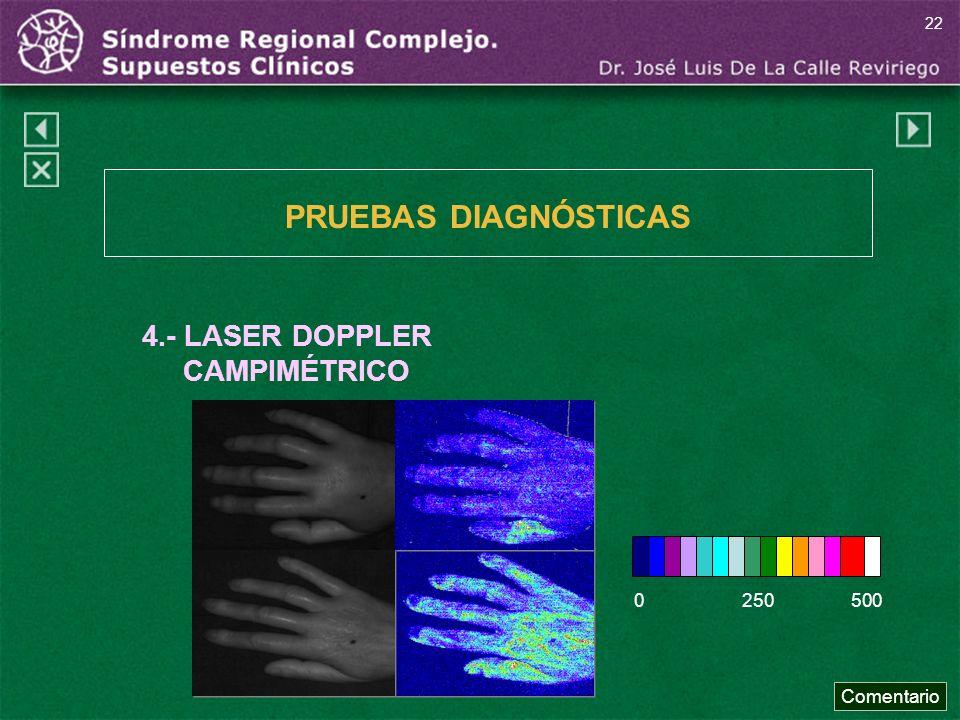 PRUEBAS DIAGNÓSTICAS 4.- LASER DOPPLER CAMPIMÉTRICO 0 250 500
