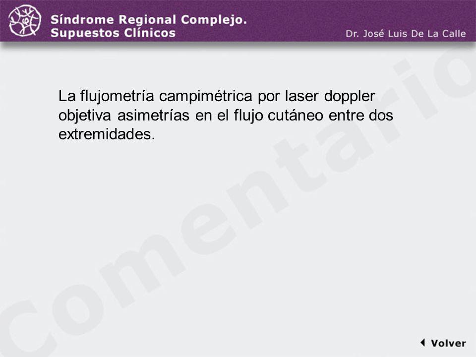 Comentario a la diapo23 La flujometría campimétrica por laser doppler objetiva asimetrías en el flujo cutáneo entre dos extremidades.
