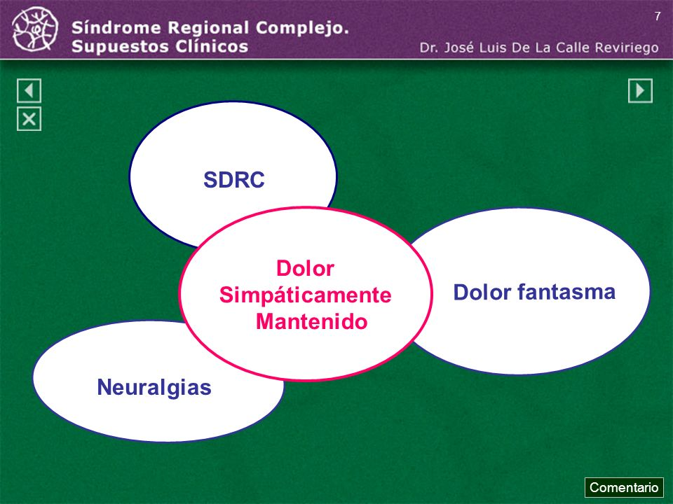 SDRC Dolor fantasma Dolor Simpáticamente Mantenido Neuralgias